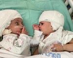 Tách thành công trẻ sinh đôi dính đầu ở Israel