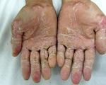 Bệnh lạ do nhiễm độc từ môi trường?