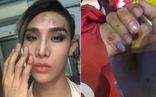 Người mẫu The Face tố bị tài xế Go Viet 'đánh vào mặt và bóp cổ'
