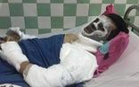 Việt kiều bị tạt axít, cắt gân chân: Công an thu được một clip quan trọng