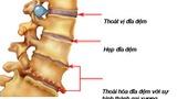 Thoái hóa cột sống ở người già và cách chữa