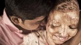 Mặt biến dạng vì axit, cô gái xúc động vì được cầu hôn