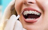 Vì sao cần nắn chỉnh răng?