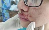 Mặt cô gái sưng phù, mưng mủ sau tiêm filler ở thẩm mỹ viện quận 1