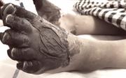 Nhiễm khuẩn huyết: có thể tử vong chỉ với một vết xước nhỏ
