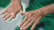 Cụng ly chúc tụng nhiều trong dịp Tết, đừng chủ quan với bệnh gút