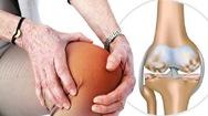 Bệnh thoái hoá khớp ở nữ và cách điều trị