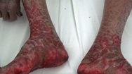 Phút cảnh báo: Cẩn trọng khi điều trị bệnh viêm da cơ địa