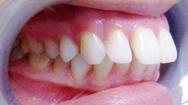 Khỏe đẹp cùng chuyên gia: Răng hô và hướng khắc phục - phần 2