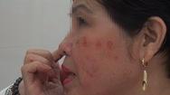 Phút cảnh báo: Da mặt tan nát vì mĩ phẩm không rõ nguồn gốc