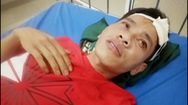 Truy tìm đối tượng bắn 3 phát súng khiến 1 thanh niên nhập viện