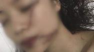 Cô gái 18 tuổi bị ba bạn gái vây đánh, rạch mặt phải khâu 60 mũi