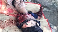 Tin nóng 24h: Lời kể của nạn nhân bị cọp nuôi cắn đứt lìa đôi cánh tay