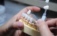 Khắc phục nhanh chóng và hiệu quả răng sứ bị hở