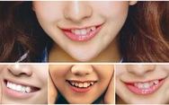 Làm răng khểnh thẩm mỹ để nụ cười thêm xinh được không?