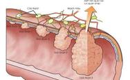 Điều trị và theo dõi ung thư đại trực tràng tránh tái phát