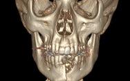 Vỡ hàm, mất răng vì thuốc lá điện tử nổ