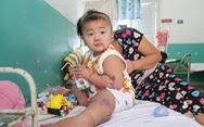 Gia tăng trẻ bị bệnh tay chân miệng tại TP. Hồ Chí Minh