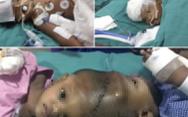 Bé trai trong cặp song sinh dính liền đầu qua đời sau 3 năm mổ tách