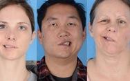'4 người bị giật méo miệng sau tiêm vắc xin COVID-19', sự thật là gì?