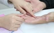 Da tay bị nứt nẻ, chảy máu do rửa dung dịch sát khuẩn quá nhiều