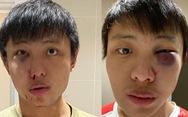 Phản đối phân biệt chủng tộc vì COVID-19, du học sinh Singapore bị hành hung ở London