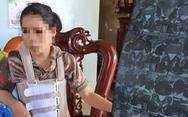 Một người vợ tố bị chồng bạo hành dã man suốt 11 năm vì 'không biết đẻ'