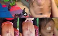 Đình chỉ cơ sở mầm non sau vụ bé 22 tháng tuổi bị bạn đánh bầm tím người