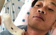 Hoài Linh từng đến Bệnh viện Chợ Rẫy điều trị ung thư tuyến giáp