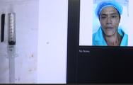 Nửa chiếc đũa nằm trong hốc mắt bệnh nhân suốt 4 năm