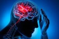 Phục hồi chức năng: bài toán sống còn sau đột quỵ