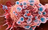 Các yếu tố nguy cơ của bệnh ung thư