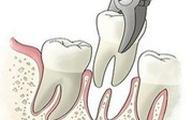 Phát hiện 3 phòng khám răng không phép tại Tân Bình