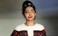 Cô gái bị tạt axit tỏa sáng trên sàn thời trang New York