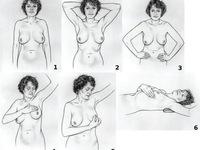 Nhận biết sớm ung thư vú