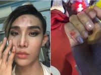 Nghi vấn Mid Nguyễn bị hành hung: GoViet sẽ tổ chức hòa giải