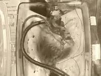 Đột phá: hồi sinh tim của người đã chết để ghép tạng