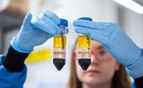 Vắc xin COVID-19 của AstraZeneca bị chê bai do... giá mềm?