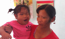 Nghi vấn cô giáo mầm non đánh bé 3 tuổi méo miệng
