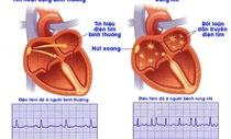 Rung nhĩ: Những điều người bệnh tim cần biết