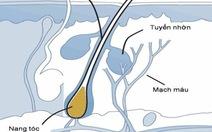 Rụng tóc do viêm nang lông tuyến bả và do viêm chân tóc