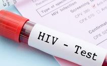 Xử trí sau khi bị phơi nhiễm HIV do nghề nghiệp
