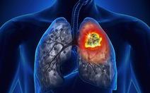 Ung thư phổi - hiểm họa của con người và biện pháp phòng ngừa