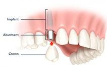 Kỹ thuật cấy ghép răng giả cùng lúc nhổ răng thật