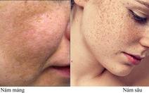 Tại sao da bị nám và cách điều trị