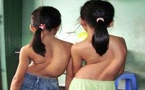 Cong vẹo cột sống ở lứa tuổi học đường