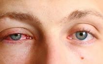 Bệnh đau mắt đỏ và các biện pháp phòng ngừa