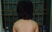 Bé trai sút 20kg nghi do cha ruột bạo hành