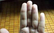 Da tay nhăn nheo vì ngâm nước: có sao không?