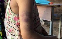 Học sinh lớp 2 bị cô đánh bầm tím vì chữ viết xấu